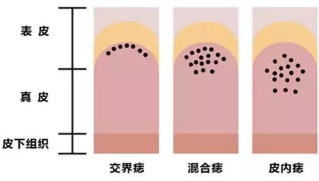 所以要想激光点痣,点浅了吧痣细胞没弄干净会复发,点彻底了吧就基本都会有点瘢痕。如果是面积较小的,好好护理回复后瘢痕会比较不明显,因此激光点痣一般都建议痣的直径<2mm的时候选择。(深度较深的一般也不建议选择,容易复发)